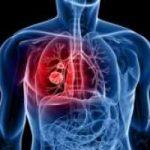 Tumore ai polmoni: un test del sangue per diagnosticarlo. Leggi intervista