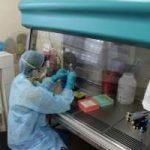Ebola: come riconoscere i sintomi del virus?