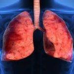 Donne:nel 2015, farà più vittime il cancro al polmone, che quello al seno
