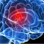 Nuova terapia contro cancro al cervello: fino a 2 anni di vita in più