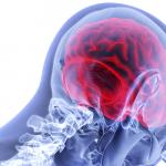 Un semplice elmetto per scansionare il cervello